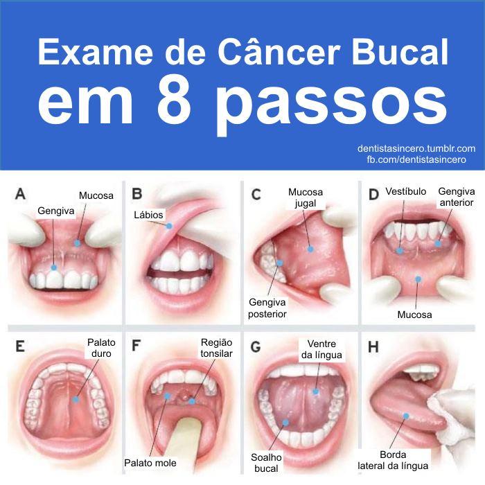 cancer bucal mas frecuente