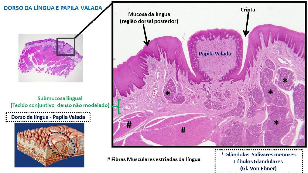 Papiloma lingual histologia - Cirugia papiloma lingual Cirugia de papiloma lingual