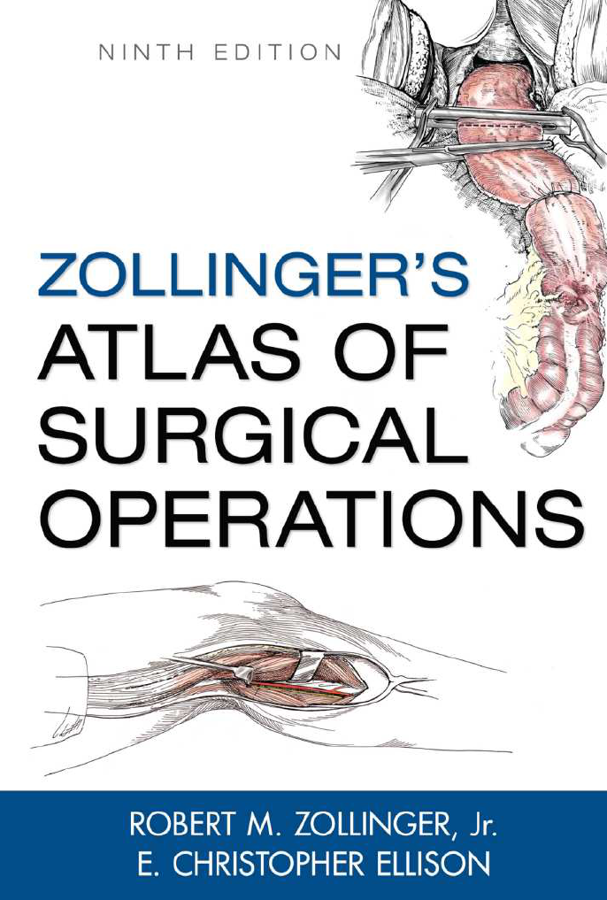 zollinger\'s atlas of surgical operations, 9th hawre14 - Cirurg
