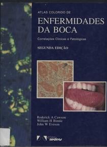 Atlas Enfermidades da Boca - CAWSON