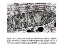 ELETROMICROGRAFIAS   Explicadas