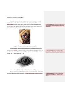 Olhos de cereja (cherry eyes)