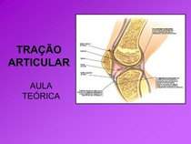_TRAÇÃO ARTICULAR.ppt[17]