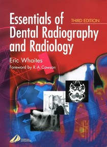 Dental essentials of dental radiography and radiology whaites 27 dental essentials of dental radiography and radiology whaites ccuart Image collections