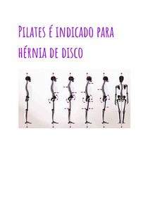 Pilates é indicado para hérnia de disco