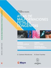 Atlas de Malformações Fetais Congênitas *Español