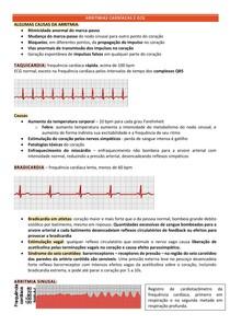 Arritmias e ECG - Fisiologia Guyton