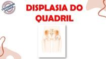 Trabalho Pediatria (Displasia) (6)