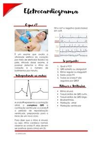 Eletrocardiograma - Como interpretar