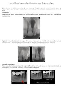 Contribuições das imagens no diagnóstico de lesões ósseas - Benignas vs malignas