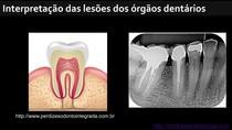Lesões do órgão dentário CST
