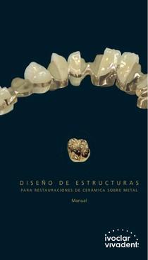 Ceramica+Sobre+Metal+Dise%C3%B1o+de+Estructuras+