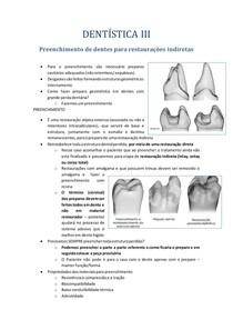 Preenchimento de dentes para restaurações indiretas