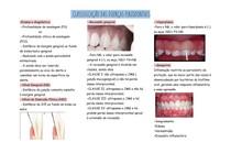 classificação das doenças periodontais