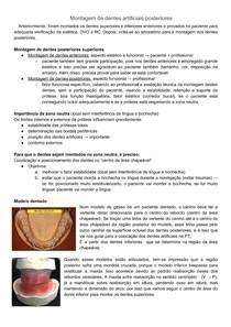 Montagem dentes artificiais posteriores