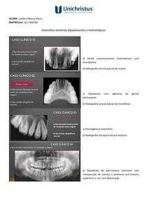 Anomalias dentárias hipoplasiantes e heterotópicas