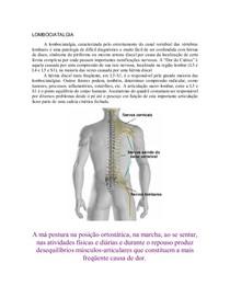 L5 compressão exercícios nervosa da de raiz