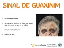 SINAL DO GUAXINIM