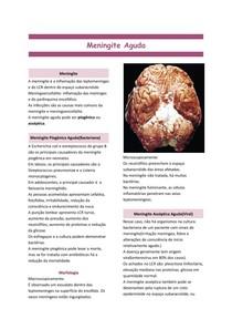 Meningite Aguda