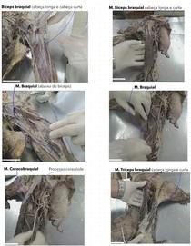 Fotos em cadáver - Extensores e flexores do braço, antebraço, mão e artérias principais.