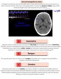 Tomografia de Crânio - Bases para entender a Tc de crânio