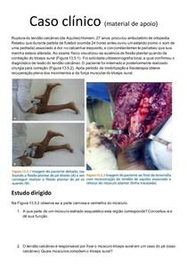 Caso clínico e exercícios sobre contração muscular