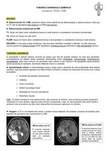 EXAMES DE IMAGEM - TUMORES CEREBRAIS (POR REBECA ZILLI)