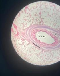 Brônquio histologia