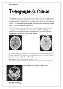 Tomografia crânio