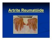 03.Artrite Reumatóide