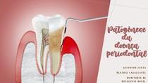 Patogênese da Doença Periodontal