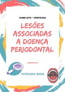 LESÕES ASSOCIADAS A DOENÇA PERIODONTAL - PATOLOGIA BUCAL