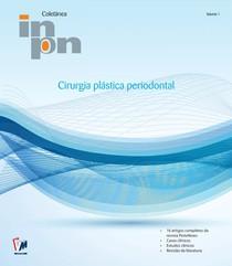 Cirurgia PlásticaPeriodontal