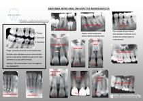 Anatomia Radiologia odontológica