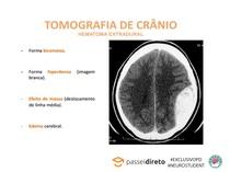 TOMOGRAFIA DE CRÂNIO - HEMATOMA EXTRADURAL