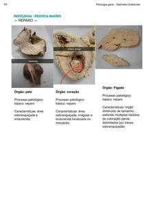 Prática patologia - macro