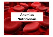 Anemias Nutricionais