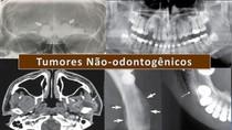 Tumores Não Odontogênicos