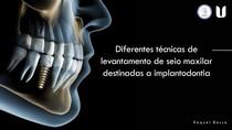Diferentes técnicas de levantamento de seio maxilar destinadas a implantodontia