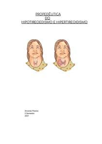 PROPEDÊUTICA DO HIPOTIREOEDISMO E HIPERTIREOIDISMO