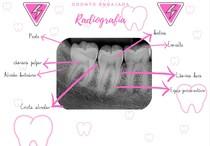 radiografia de um dente