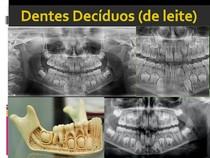 Aspecto Radiográficos Dentições