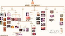 Lesões Elementares - Mapa Mental COMPLETO