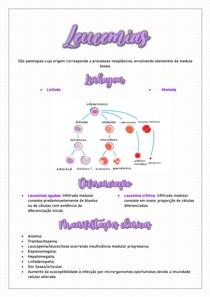 Leucemias - Resumo Hematologia