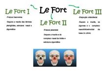 Mapa Mental Le Fort
