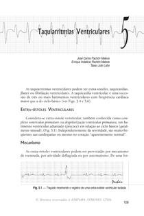05   Taquiarritmias Ventriculares