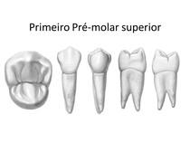 Anatomia Primeiro e Segundo Pré-molar Superior
