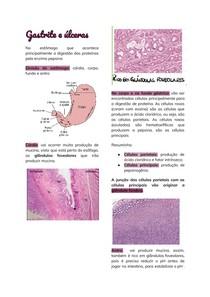 Gastrite e úlceras