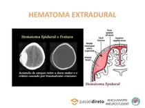 HEMATOMA EXTRADURAL