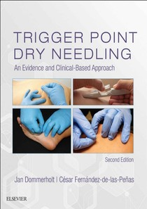 Trigger_Point_Dry_Needling_An_Evidence_and_Clinical_Based_Approach